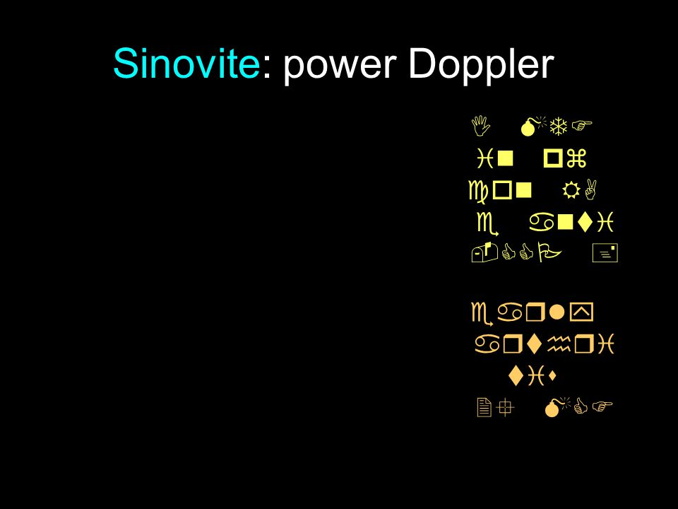 Sinovite: power Doppler