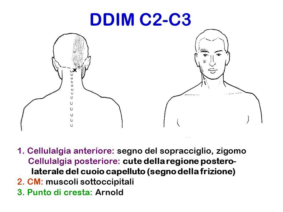 DDIM C2-C3 1. Cellulalgia anteriore: segno del sopracciglio, zigomo