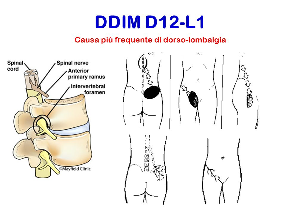 DDIM D12-L1 Causa più frequente di dorso-lombalgia