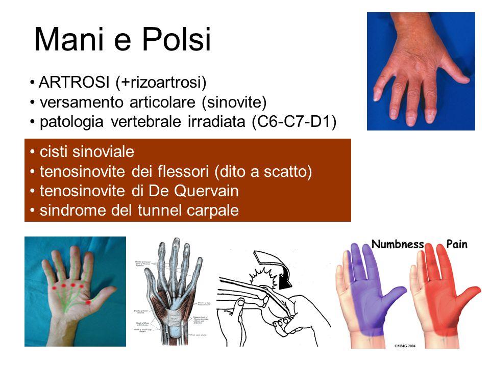 Mani e Polsi ARTROSI (+rizoartrosi) versamento articolare (sinovite)