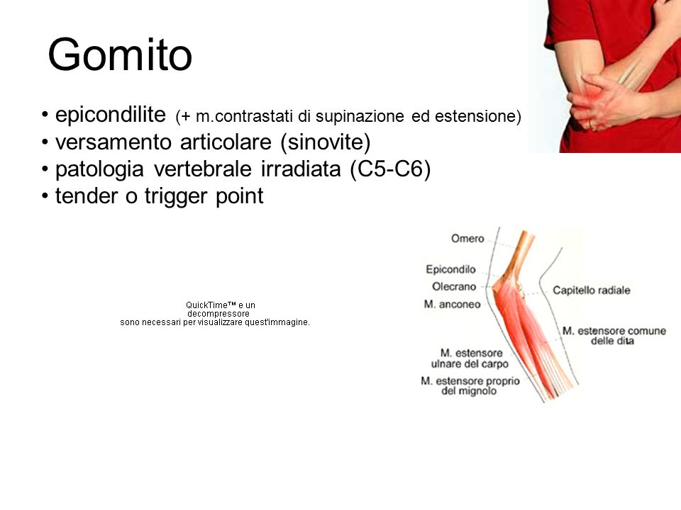 Gomito epicondilite (+ m.contrastati di supinazione ed estensione)