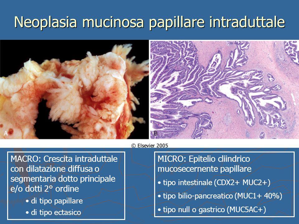 Neoplasia mucinosa papillare intraduttale