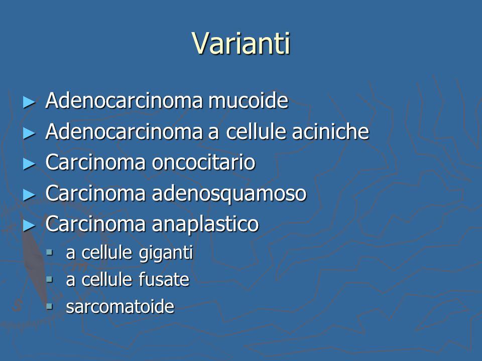 Varianti Adenocarcinoma mucoide Adenocarcinoma a cellule aciniche