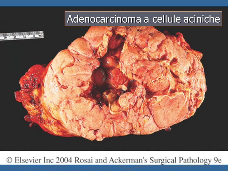 Adenocarcinoma a cellule aciniche
