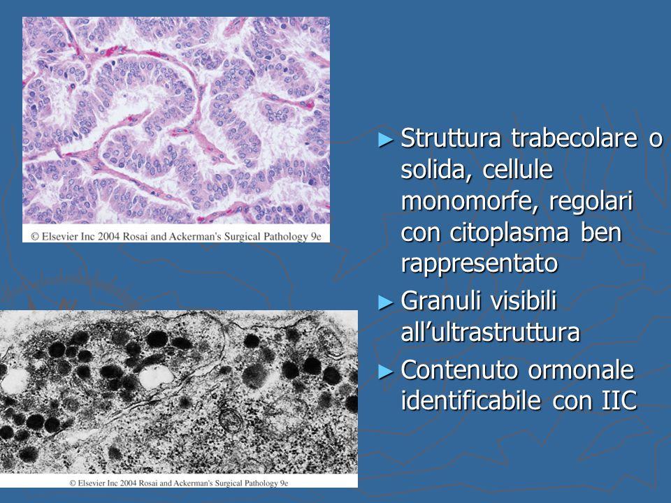 Struttura trabecolare o solida, cellule monomorfe, regolari con citoplasma ben rappresentato