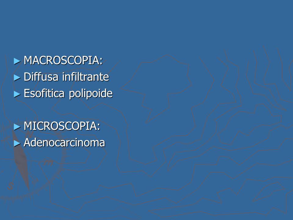 MACROSCOPIA: Diffusa infiltrante Esofitica polipoide MICROSCOPIA: Adenocarcinoma
