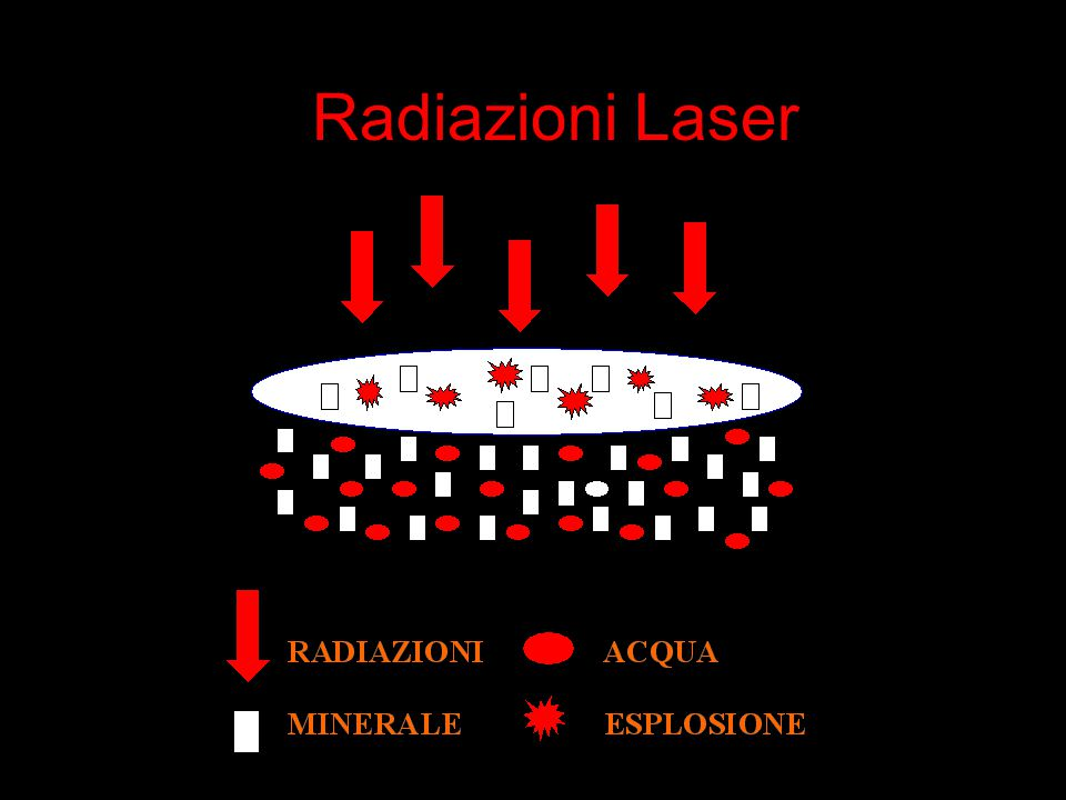 Radiazioni Laser