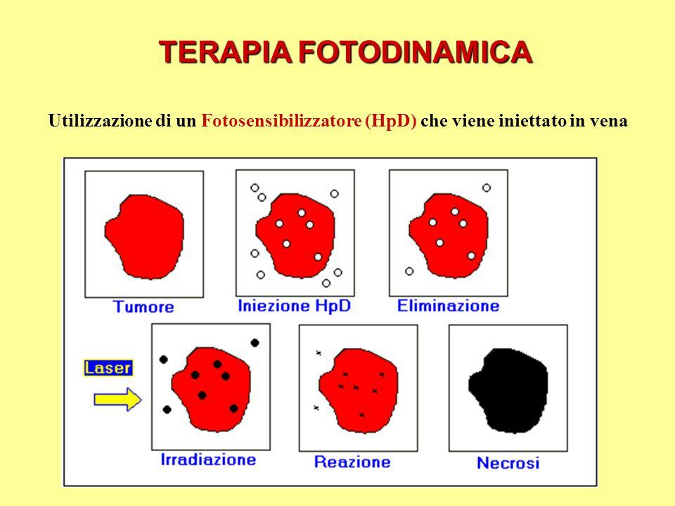 TERAPIA FOTODINAMICA Utilizzazione di un Fotosensibilizzatore (HpD) che viene iniettato in vena