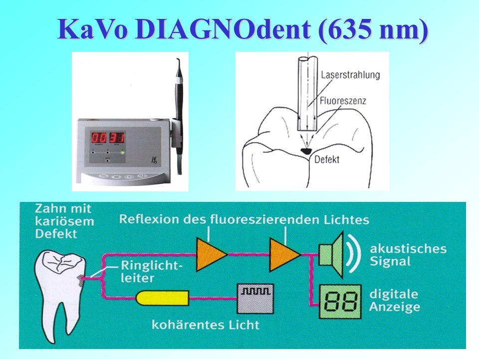 KaVo DIAGNOdent (635 nm)