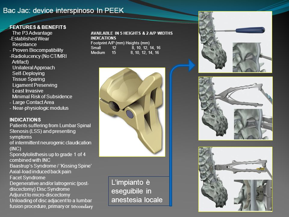 Bac Jac: device interspinoso In PEEK