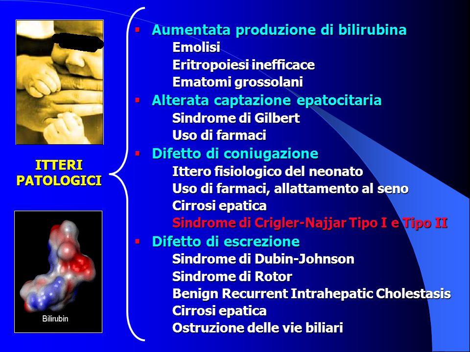 Aumentata produzione di bilirubina