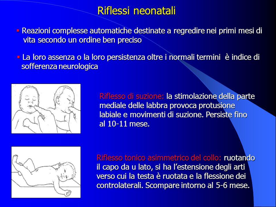 Riflessi neonatali Reazioni complesse automatiche destinate a regredire nei primi mesi di. vita secondo un ordine ben preciso.