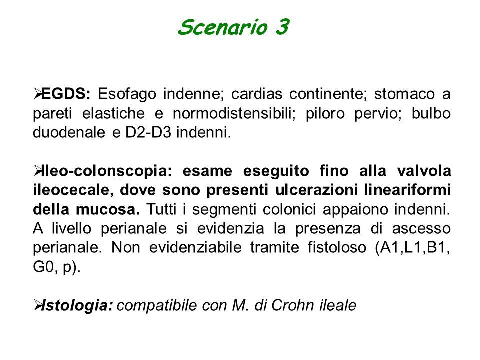 Scenario 3 EGDS: Esofago indenne; cardias continente; stomaco a pareti elastiche e normodistensibili; piloro pervio; bulbo duodenale e D2-D3 indenni.