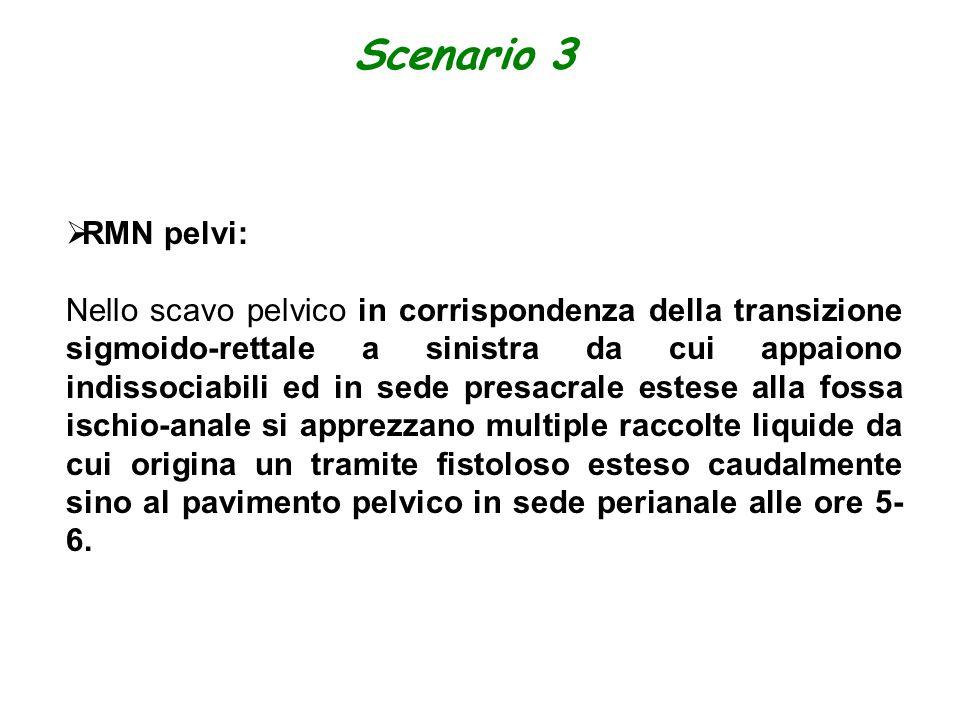 Scenario 3 RMN pelvi: