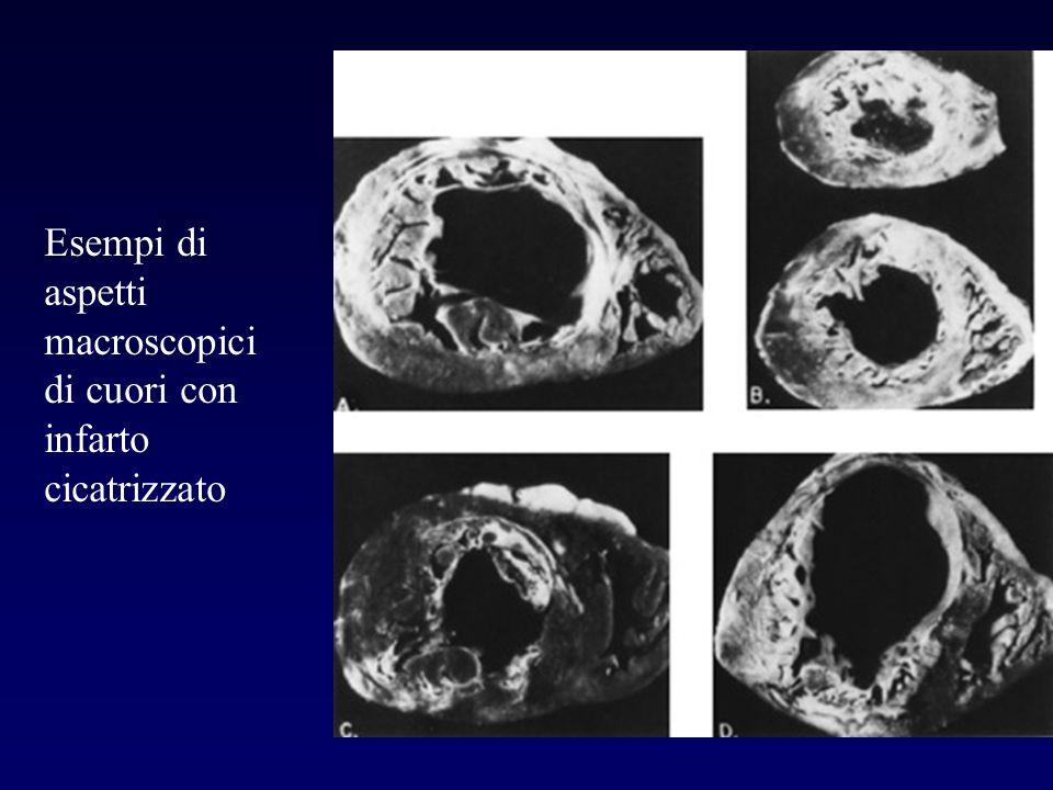 Esempi di aspetti macroscopici di cuori con infarto cicatrizzato