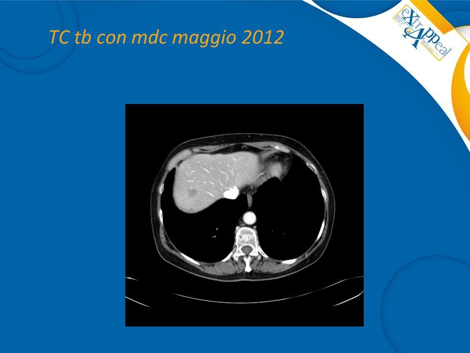 TC tb con mdc maggio 2012