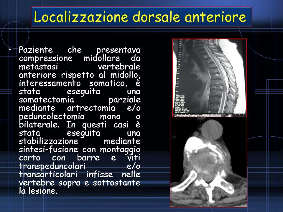 Localizzazione dorsale anteriore
