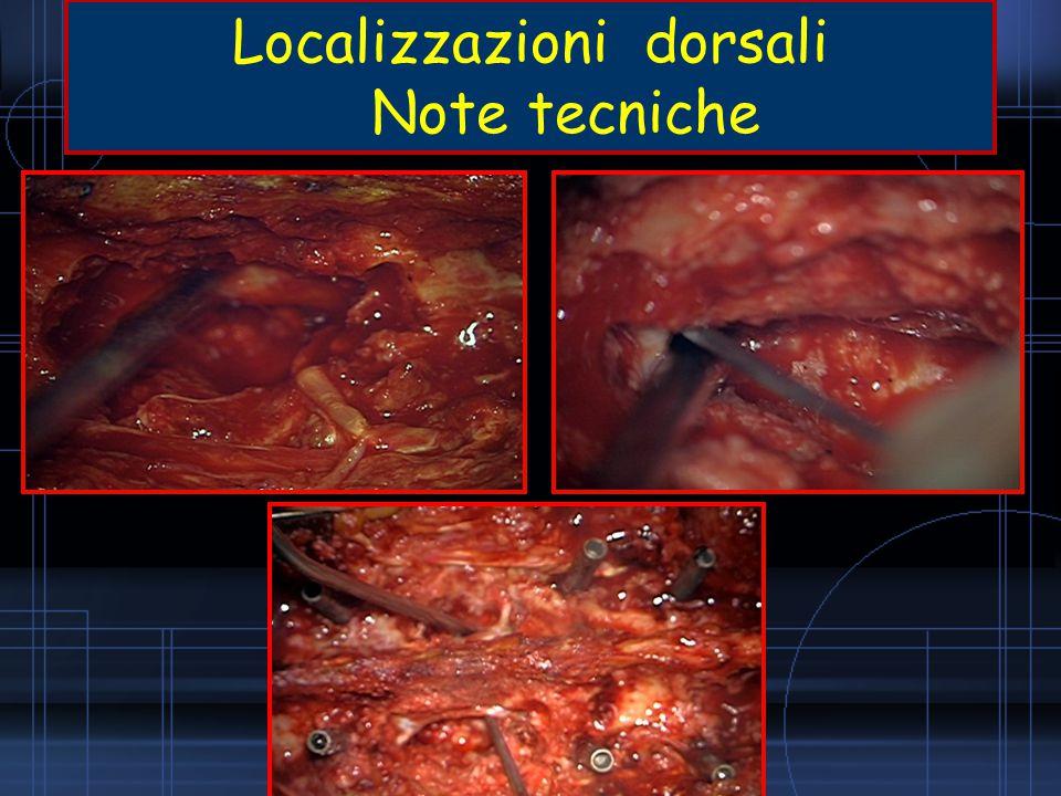 Localizzazioni dorsali Note tecniche
