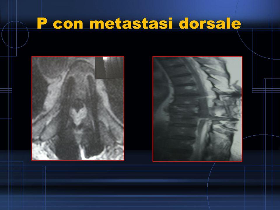 P con metastasi dorsale