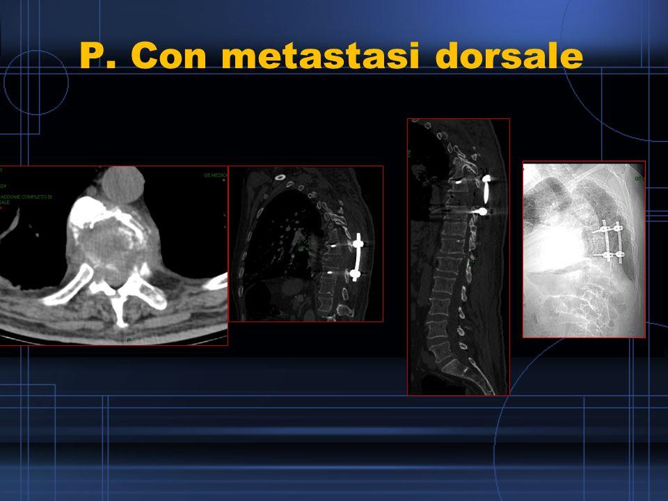 P. Con metastasi dorsale