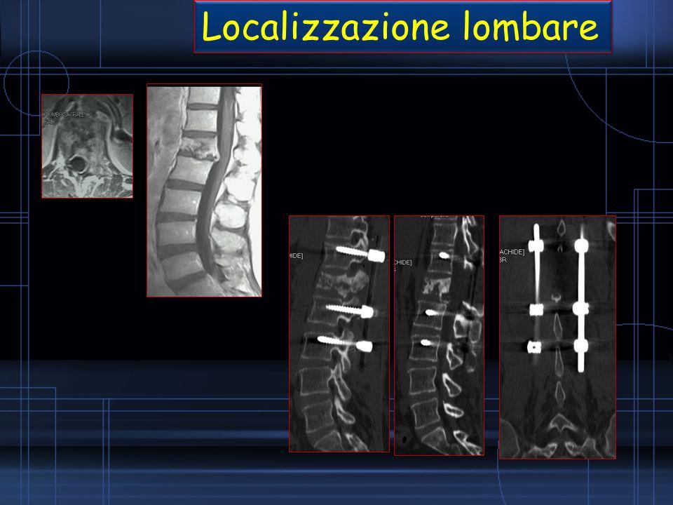 Localizzazione lombare