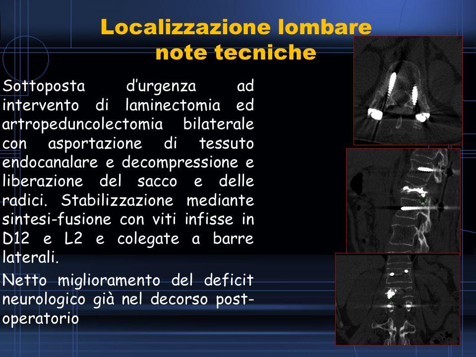 Localizzazione lombare note tecniche