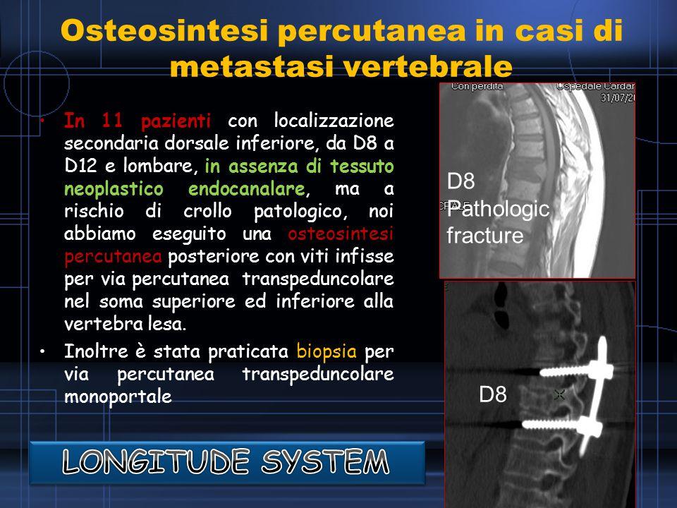 Osteosintesi percutanea in casi di metastasi vertebrale
