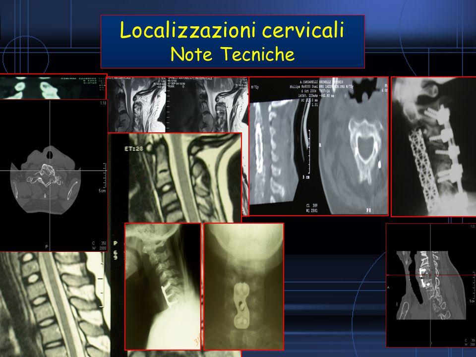 Localizzazioni cervicali