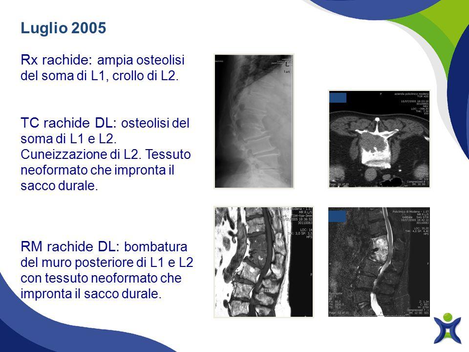 Luglio 2005 Rx rachide: ampia osteolisi del soma di L1, crollo di L2.