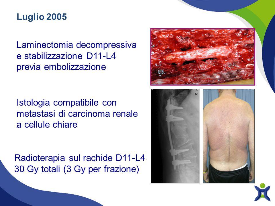Luglio 2005 Laminectomia decompressiva e stabilizzazione D11-L4 previa embolizzazione.
