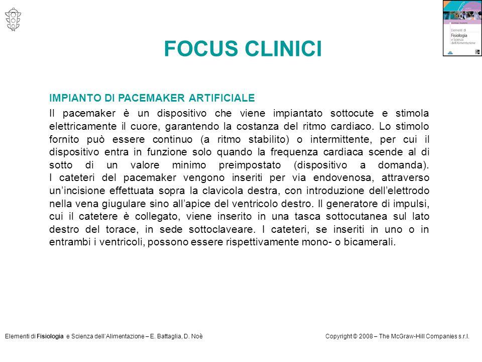 FOCUS CLINICI IMPIANTO DI PACEMAKER ARTIFICIALE
