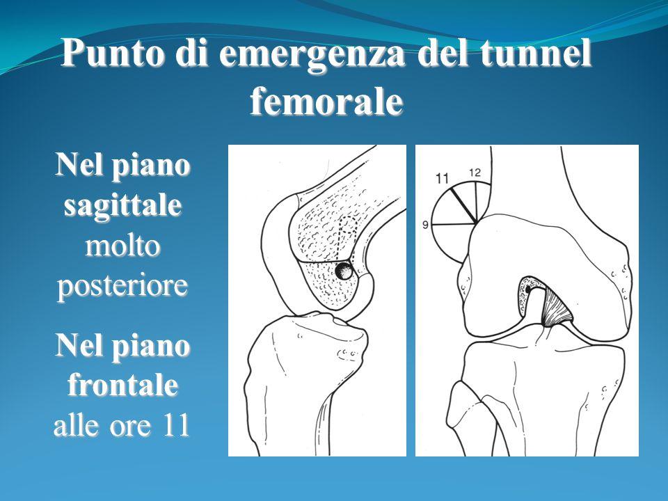 Punto di emergenza del tunnel femorale