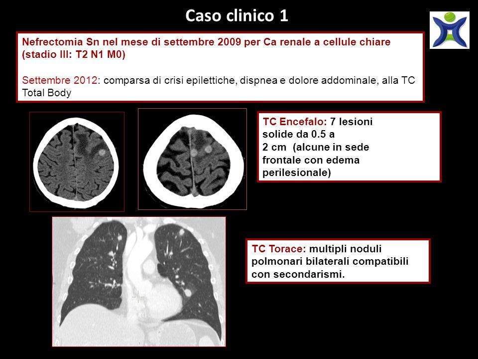 Caso clinico 1 Nefrectomia Sn nel mese di settembre 2009 per Ca renale a cellule chiare (stadio III: T2 N1 M0)