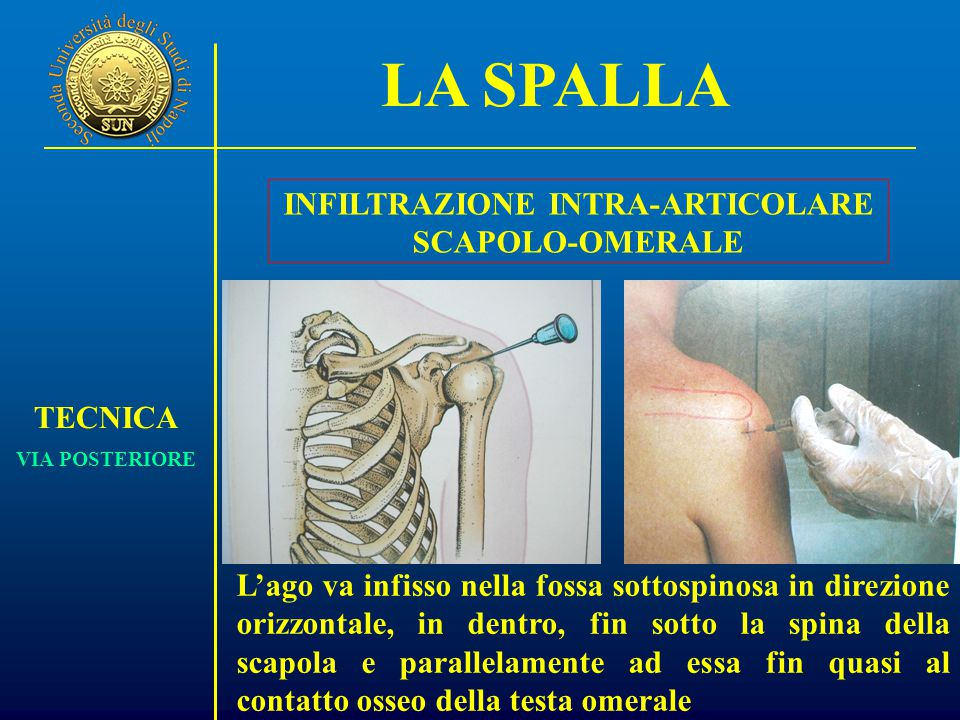 INFILTRAZIONE INTRA-ARTICOLARE SCAPOLO-OMERALE