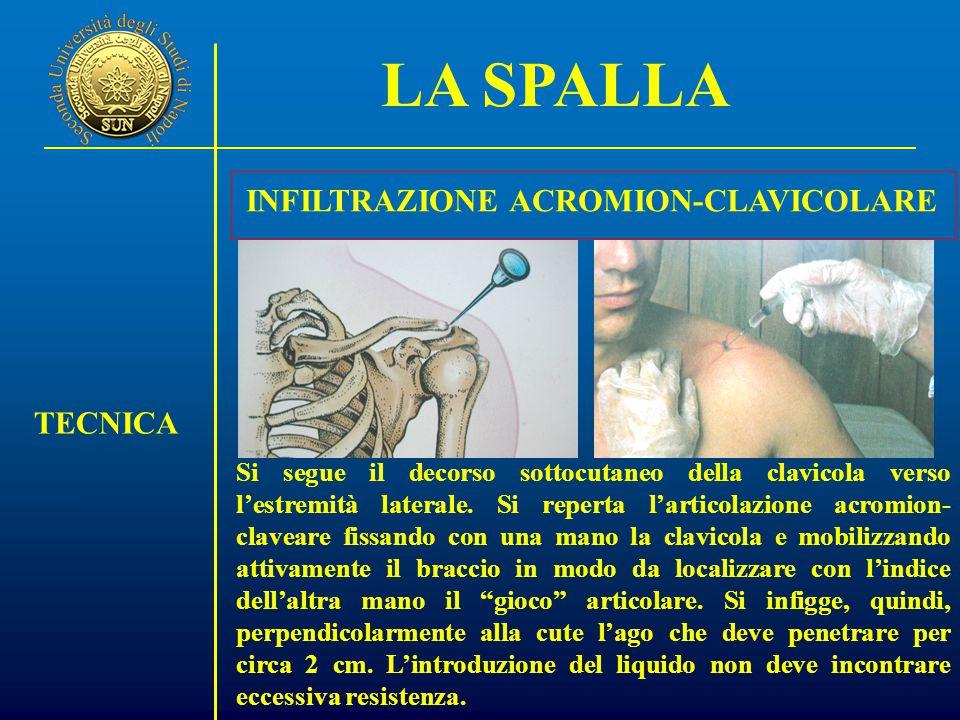 INFILTRAZIONE ACROMION-CLAVICOLARE