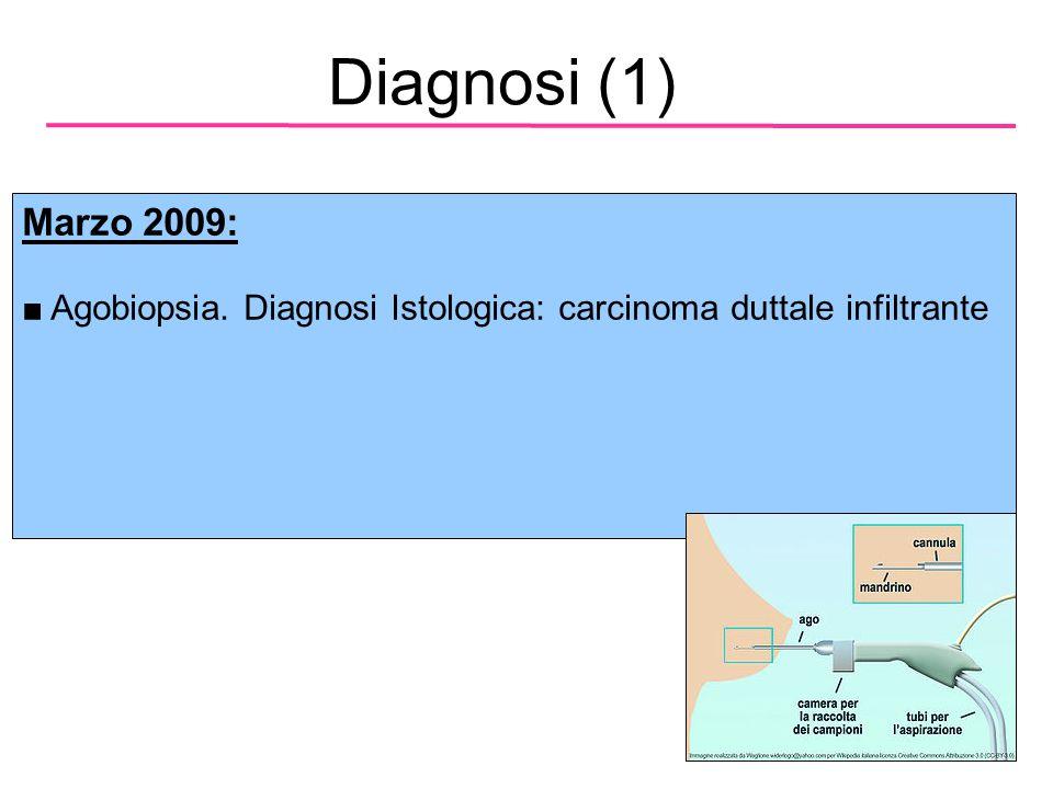 Diagnosi (1) Marzo 2009: Agobiopsia. Diagnosi Istologica: carcinoma duttale infiltrante 4 4 4