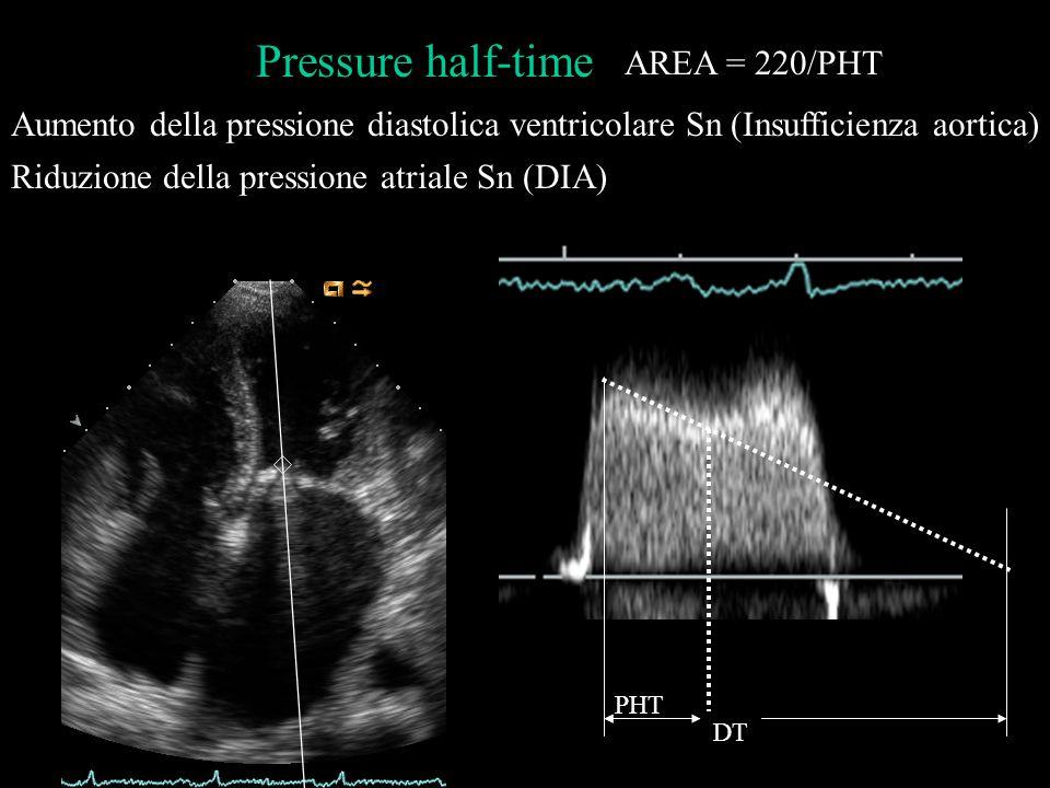 Riduzione della pressione atriale Sn (DIA)