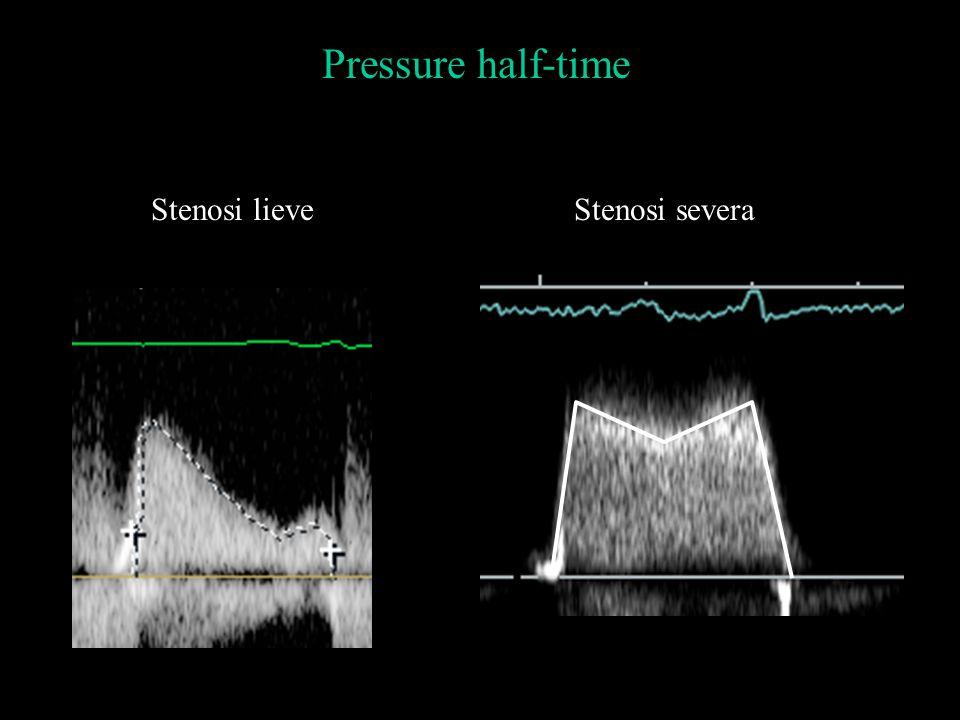 Pressure half-time Stenosi lieve Stenosi severa