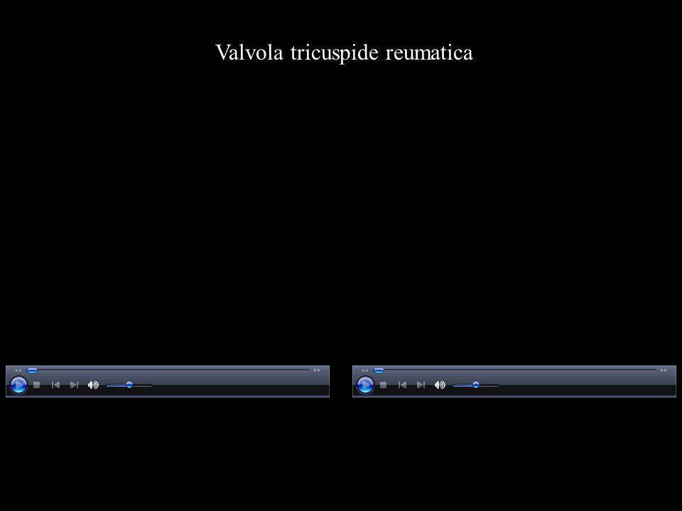 Valvola tricuspide reumatica