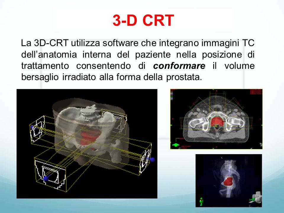 3-D CRT