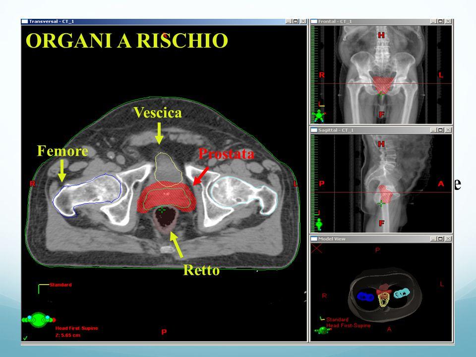 Organi a rischio ORGANI A RISCHIO Figure contornazione Vescica Femore