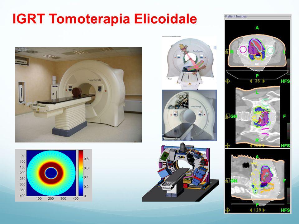IGRT Tomoterapia Elicoidale
