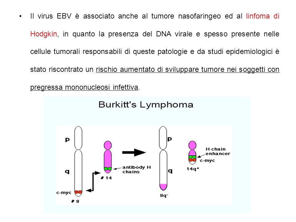 Il virus EBV è associato anche al tumore nasofaringeo ed al linfoma di Hodgkin, in quanto la presenza del DNA virale e spesso presente nelle cellule tumorali responsabili di queste patologie e da studi epidemiologici è stato riscontrato un rischio aumentato di sviluppare tumore nei soggetti con pregressa mononucleosi infettiva.