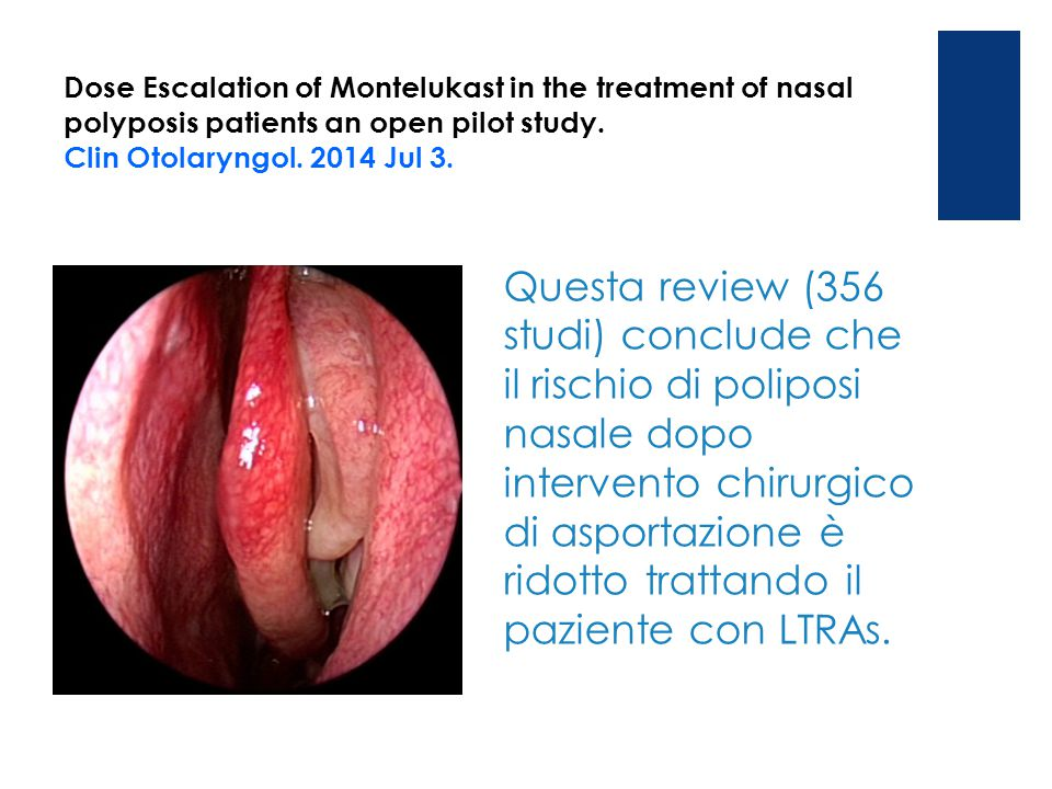 Dose Escalation of Montelukast in the treatment of nasal polyposis patients an open pilot study. Clin Otolaryngol. 2014 Jul 3.