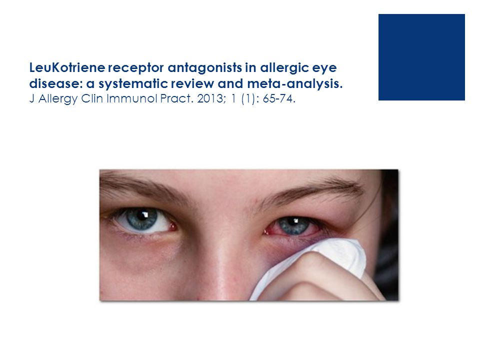 LeuKotriene receptor antagonists in allergic eye disease: a systematic review and meta-analysis. J Allergy Clin Immunol Pract. 2013; 1 (1): 65-74.