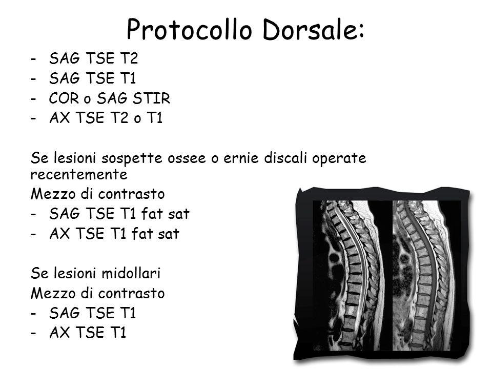 Protocollo Dorsale: SAG TSE T2 SAG TSE T1 COR o SAG STIR