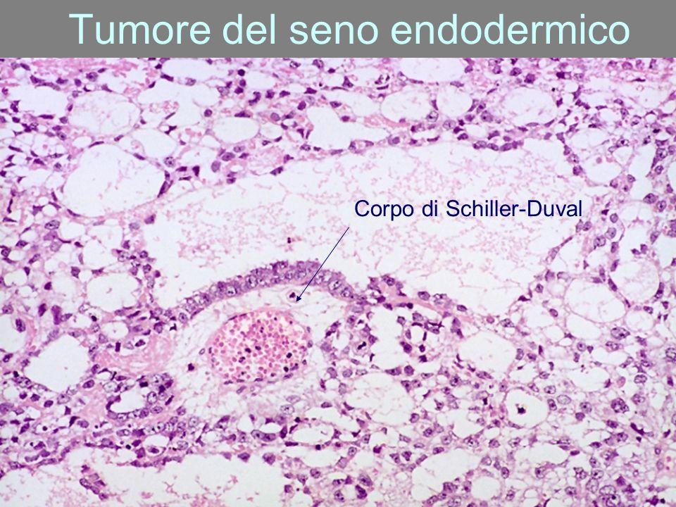 Tumore del seno endodermico