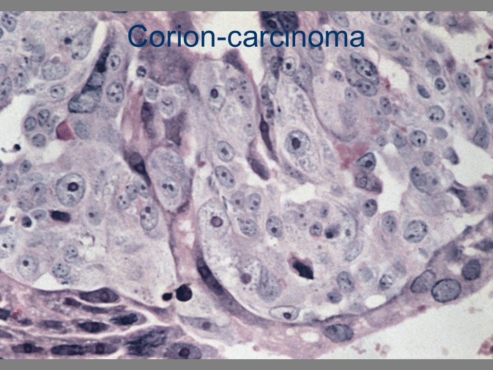 Corion-carcinoma