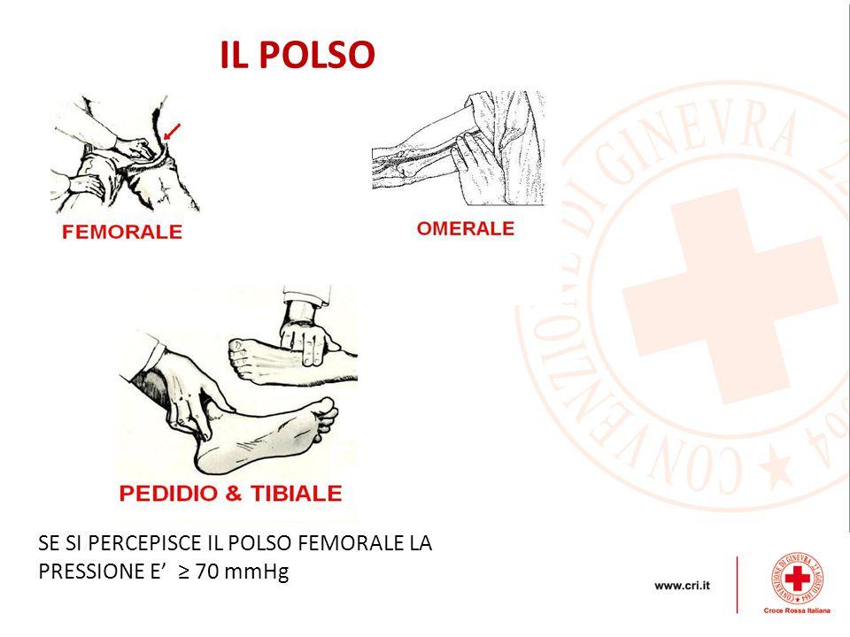 IL POLSO SE SI PERCEPISCE IL POLSO FEMORALE LA PRESSIONE E' ≥ 70 mmHg