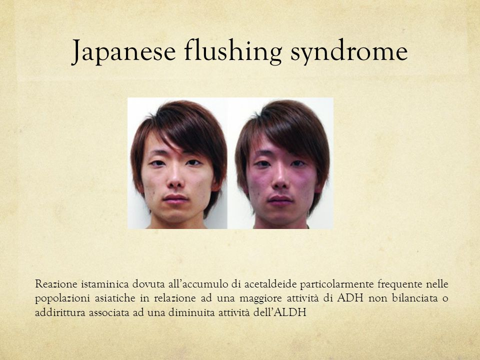 Japanese flushing syndrome